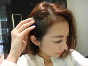 alopeciya_i_ee_raznovidnosti
